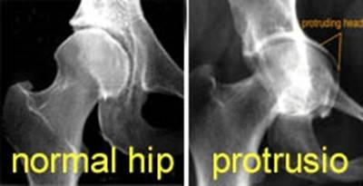 the hip joint is an example of a