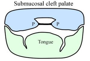 a cleft palate is an example of which etiological classification